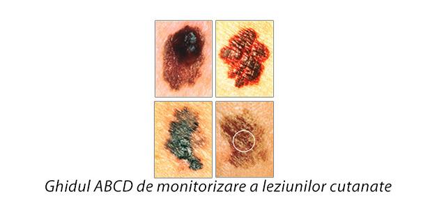 Ghidul ABCD de monitorizare a leziunilor cutanate